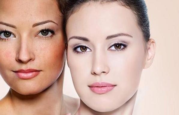 Uống gì để trị nám da mặt từ bên trong an toàn và hiệu quả nhất hiện nay? Tìm hiểu ngay