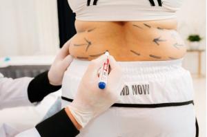 Công nghệ giảm béo Max Burn Lipo là gì